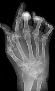 radiografía de mano con artritis