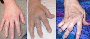 manos con osteoartrosis