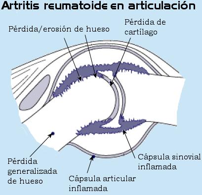 Artritis en las articulaciones