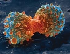 celulas cancerosas pulmonares